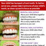 Dental Emergencies in Cary NC Guide