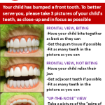 Dental Emergencies in Cary NC Guide